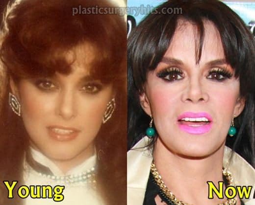 Belle Lucia Before Plastic Surgery photo 1